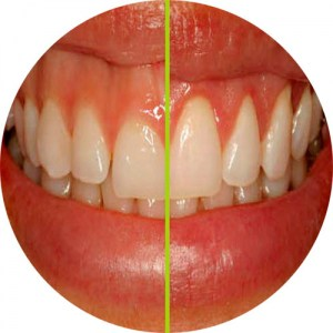 Composite veneers by cosmetic dentist, Liverpool