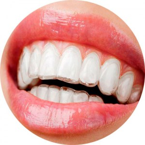 Teeth Straightening with removable braces, Liverpool