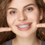 Teeth Straightening: The Secret Behind A Beautiful Smile