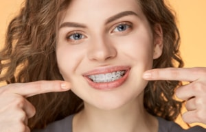 Teeth Straightening in liverpool