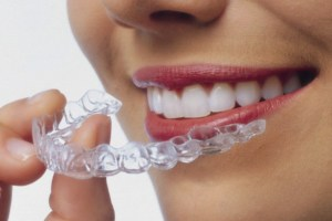 Invisalign braces - invisalign in liverpool