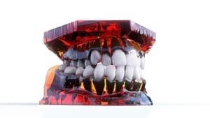 straight teeth problems
